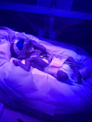 Maurice back on phototherapy due to high bilirubin and jaundice. Also changed to a mask because his nose was getting red from the prongs