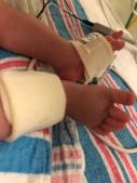 Peters swollen little feet